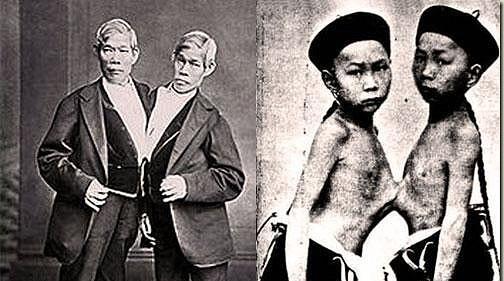 Resultado de imagen de Chang y Eng, los increíbles hermanos siameses